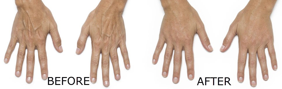 Hands Before and After Radiesse